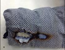 01 ダウンジャケットの穴、破れの修理